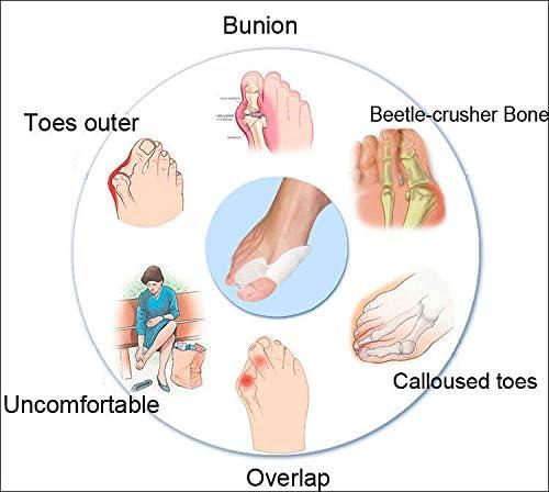 Tatapai Orthopädische Einlegesohlen 2 Paar Weiche Silikon Gel Fuß Finger Zehen Separator Ausrichtungschmerzlinderungknochen Ektropion Glätteisen Gesundheitsprodukt-Pink