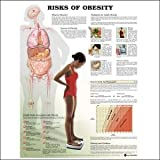 Risks of Obesity Anatomical Chart, Anatomical Chart Company Staff, 1587793806