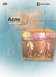 Acne: An Overview (Dermatology)