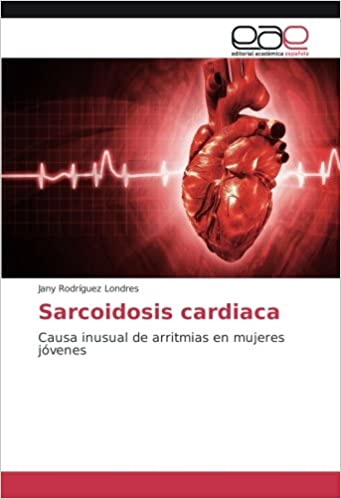 Arritmia cardiaca in english