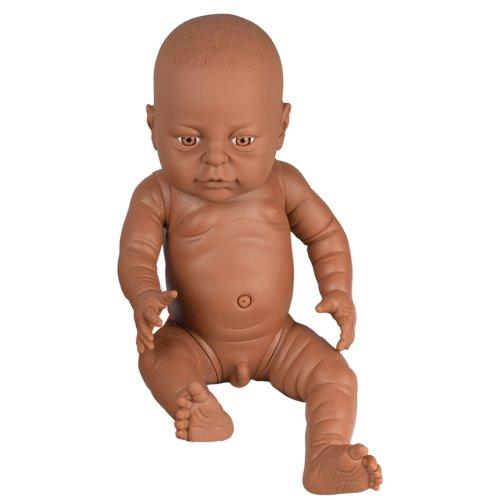 black baby born