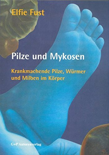 Pilze und Mykosen: Krankmachende Pilze, Würmer und Milben im Körper by Elfie Fust (2013-09-05)