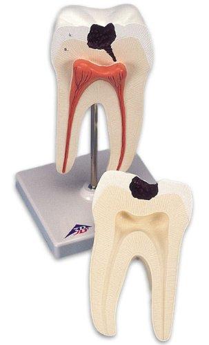 3B社 歯模型 下顎大臼歯(2根)モデル (d10-4)   B003Z2MFWG