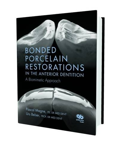 (Bonded Porcelain Restorations in the Anterior Dentition: A Biomimetic Approach)