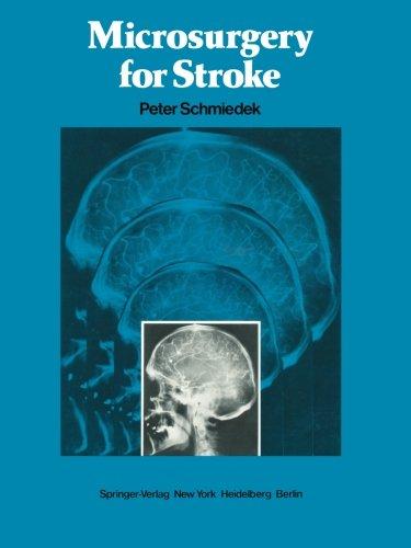 Microsurgery for Stroke