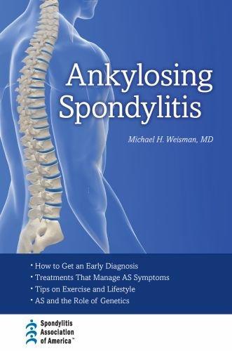Ankylosing Spondylitis Buy Online In Uae Hardcover