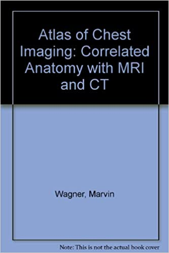 Atlas of Chest Imaging: Correlated Anatomy With Mri and Ct: Marvin