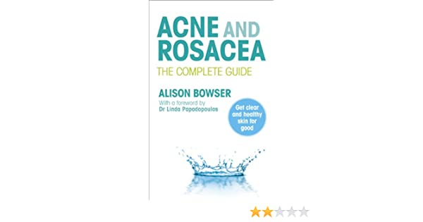acne and rosacea bowser alison