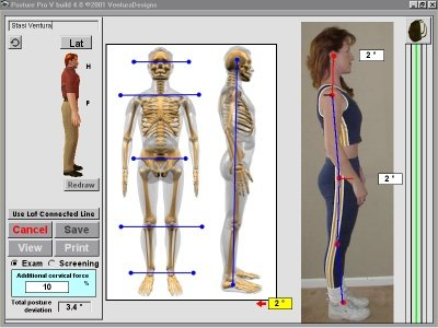 Posture Pro Exam