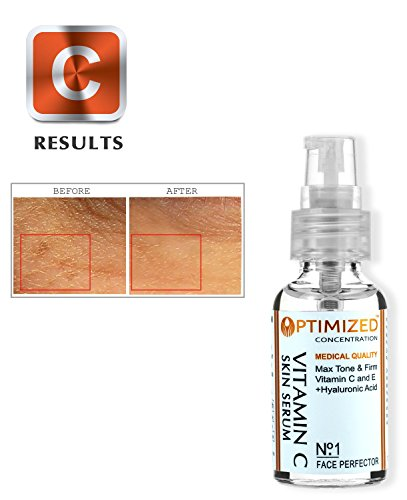 #1 BEST Anti Aging Vitamin C Serum with Vitamin E and Hyaluronic Acid, Medical Grade Skin Care For Face, Fill Fine Lines, Fades Age Spots, Evens Skin Tone, Anti Wrinkle OPTIMIZED for Day Use.