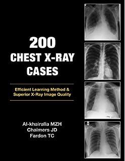 A textbook of X-ray diagnosis: Amazon co uk: Seymour