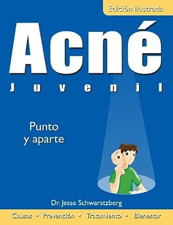 Acné Juvenil: Punto y Aparte (Colección Salud) (Spanish Edition