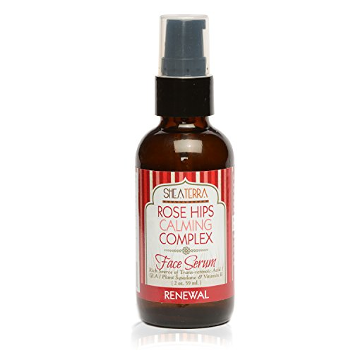 Shea Terra Organics Rose Hips Calming Complex Face Serum | Anti-Irritation Facial Treatment, Anti-Aging Drops, All Natural Home Spa Products and Beauty Salon Supplies – 2 oz