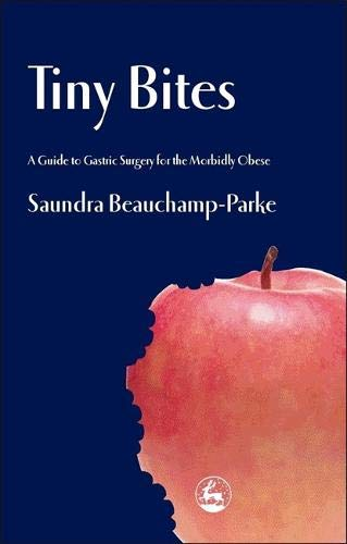 Tiny Bites: A Guide to Gastric Surgery for the Morbidly Obese (Best Diet For Morbidly Obese)