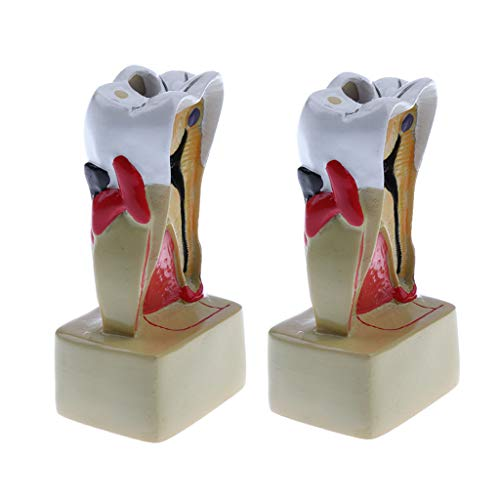 Flameer 2 PCS 1:1 Human Diseased Tooth Decay Model Lab Supplies Science Toy Educative