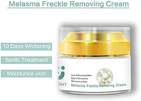 ZeLight Crema Blanqueadora Facial para Mujer,Anti-Envejecimiento Hidratante Crema de Anti Manchas Cara con Ácido Hialurónico,Eliminación de pecas,Puntos Oscuros,Tratamiento para el Cuidado de la Piel