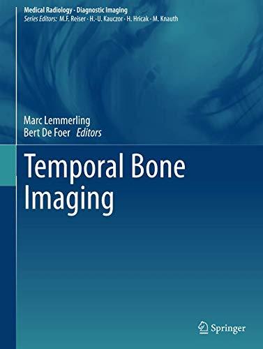 Temporal Bone Imaging  Medical Radiology