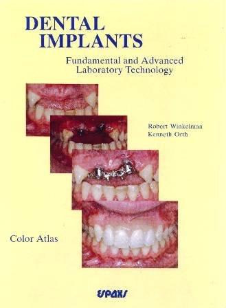 Dental Implants: Fundamental and Advanced Laboratory Technology