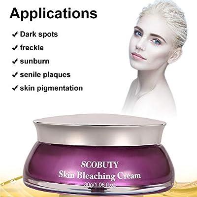Skin Lightening Cream, Whitening Cream, Brightening Cream, Melasma Treatment Cream, Freckle Removal Cream For Face Brightening, Dark Spot, Skin Pigmentation, Age Spots For Face and Body