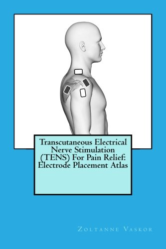 - Transcutaneous Electrical Nerve Stimulation (TENS) For Pain Relief: Electrode Placement Atlas