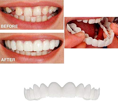 5Pcs Temporary Cosmetic Teeth Denture Teeth Cosmetic Simulated Braces Upper Braces/Lower Braces, Whitening Teeth Snap Cap On Instant Comfortable Flex Perfect Veneers,Upperteeth5pcs