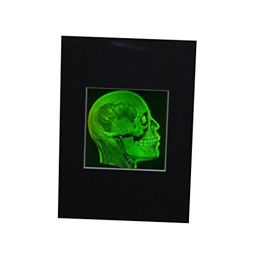 (Brain/Skull (Anatomically Accurate) True 3D Photopoloymer Realistic 2-Channel 3D Hologram Picture (Matted Only))