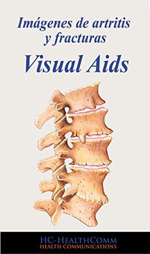 Descargar Libro Imágenes De Artritis Y Fracturas, Visual Aids: Full Ilustrado 2016 Hc-healthcomm
