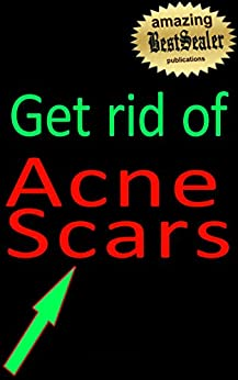 how to get rid of pimple scars fast home remedies