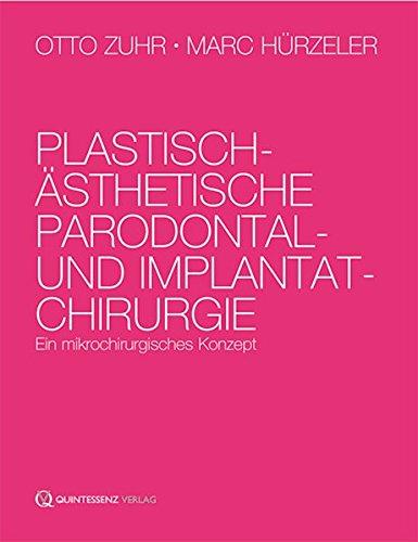 Plastisch-ästhetische Parodontal- und Implantatchirurgie: Ein mikrochirurgisches Konzept