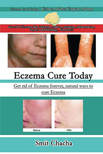 Eczema Cure Today - Get rid of Eczema forever natural ways to cure Eczema