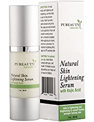 Skin Lightening Serum by Pureauty Naturals with Kojic Acid - Skin Whitening & Brightening Beauty Care Cream For Body, Face, Neck, Bikini, Sensitive Areas & All Skin Types - Dark Spot Corrector