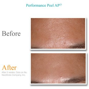 Exuviance Performance Peel AP25, 12 Count by Exuviance (Image #3)