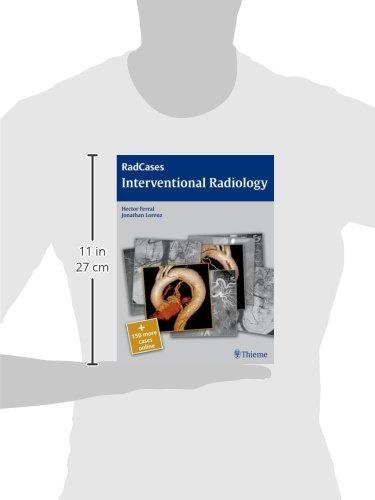 Radcases Interventional Radiology