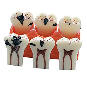 Zgood 4 Times Dental Caries Evolution Tooth Decay Model