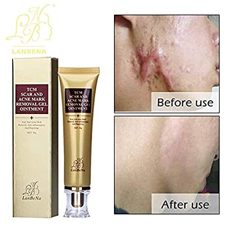 Authentic TCM LanBeNa Scar Acne mark face /& body ointment 30g real UK seller