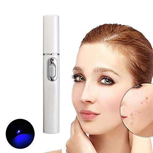 Spider Vein Eraser Powerful Anti-varicose Veins Removal Pen Blue Light Machine For Anti-Inflammation, Acne Scar Removal, Improve Skin Elasticity,Skin Tightening Wrinkle Removal Treatment (White) (Acne Eraser)