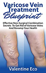 Varicose Vein Treatment Blueprint: Effective Non-Surgical Combination Secrets To Get Rid Of Varicose Veins & Revamp Your Health