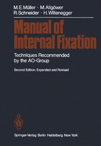 Manual of Internal Fixation: Techniques Recommended by the AO Group