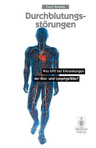 Durchblutungsstörungen: Was Hilft Bei Erkrankungen Der Blutund Lymphgefäße?
