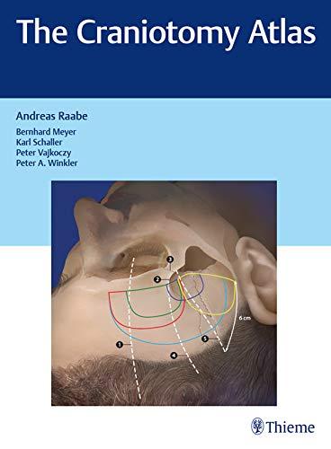The Craniotomy Atlas  English Edition