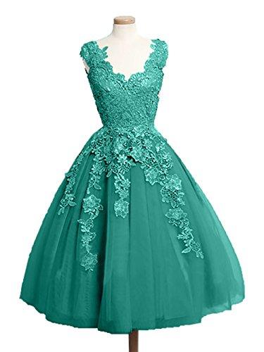 Gruen Tanzenkleider Abendkleider Jaeger Knielang Tuell Glamour Abschlusskleider Promkleider Charmant Damen Spitze Partykleider xqgn7P