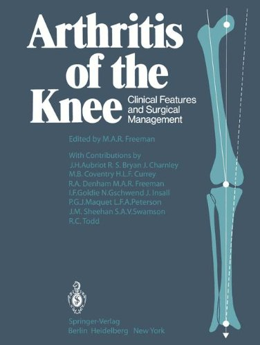 arthritis-of-the-knee-clinical-features-and-surgical-management