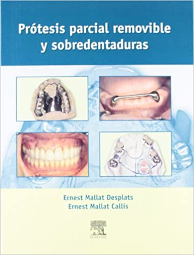 mallat protesis parcial removible