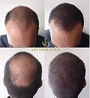 Fibras Capilares Salvathor Duran 25 g - Keratin Fibers - Disimula Alopecia - Cubre Caída del Cabello - Crea Volumen del Pelo de Hombres y Mujeres - ...
