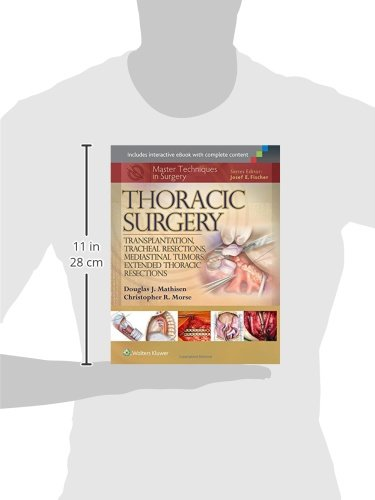 Master Techniques in Surgery: Thoracic Surgery: Transplantation, Tracheal Resections, Mediastinal Tu - http://medicalbooks.filipinodoctors.org