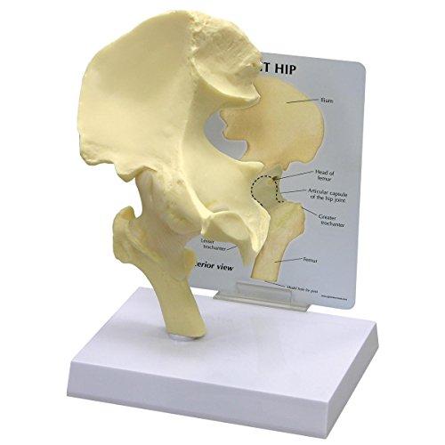 Anatomía de Articulación de cadera humana/modelo anatómico de # 1260