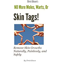 No More Moles Warts or Skin Tags!