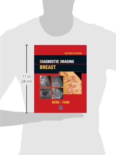 Diagnostic Imaging: Breast, 2nd ed: Published by Amirsys