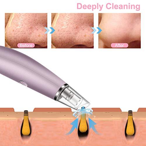 Blackhead Remover Vacuum Pore Cleaner, Alin&Alan Electric Blackhead Vacuum Suction Devices, USB Rechargeable Acne…