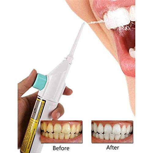 Kikole Water Flosser,Travel Water Jet Cordless Air Technology Dental Oral Irrigator for Teeth Cleaning Dental Care from Kikole